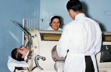 Vastüdő és vasfüggöny: a járványos gyermekbénulás leküzdésében világelsők voltunk