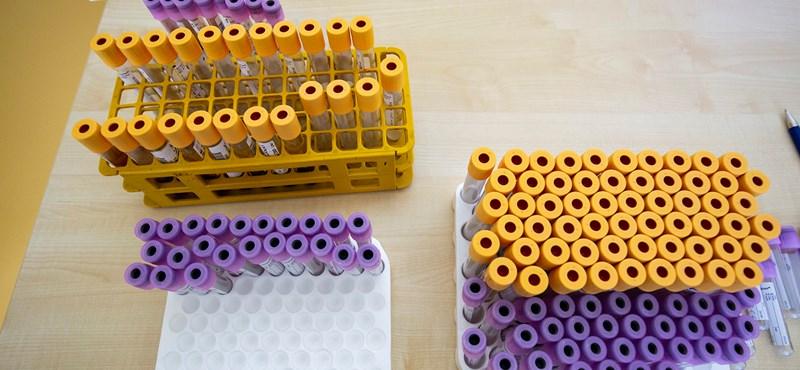 Minden Kínába érkező külföldi számára kötelező lesz az anális koronavírusteszt
