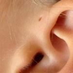 Észrevette magán vagy másokon? Néhány embernek van egy furcsa lyuk a füle tövében