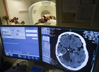 Néhány magyarországi kórházban a mesterséges intelligencia is segíti a stroke-betegek kezelését