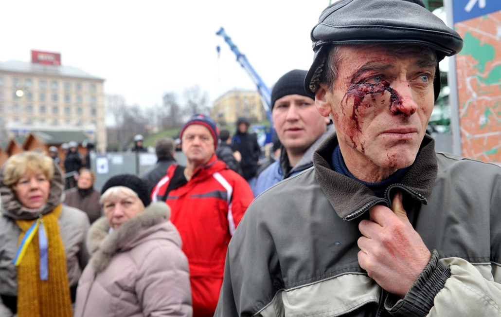 afp. nagyításhoz - ne használd - 2013.11.30. A protester injured in clash with police, stands on Independence Square in Kiev on November 30, 2013. Ukraine police swinging truncheons early Saturday brutally dispersed protesters calling for President Viktor