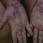 Kéz-láb-száj fertőzés fenyegeti a gyerekeket, de állítólag nem veszélyes
