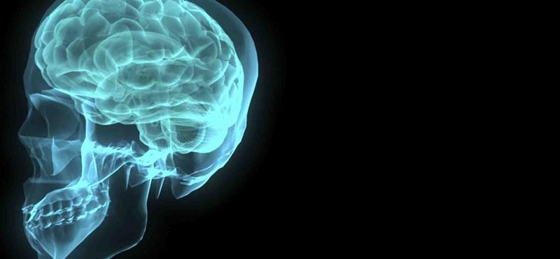 110 éves a leghíresebb teszt – önnek mekkora az IQ-ja?