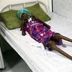 Félmillió gyerek halhat meg az idén a fegyverként használt éheztetésben