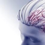 Komoly gondokat okozhat az agyban a koronavírus