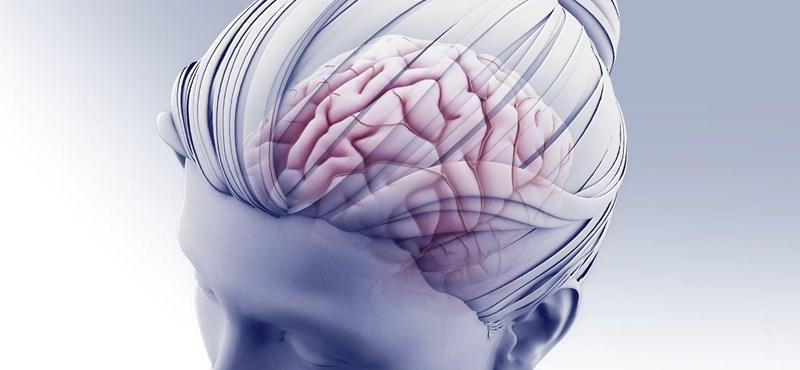 Online tanítják a stroke tüneteit a Semmelweis Egyetem orvosai