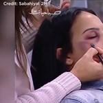 Megmutatta egy marokkói tévé, hogyan sminkeljenek a bántalmazott nők