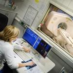 Van egy ráktípus, amellyel Magyarország vezeti a halálozási statisztikát