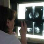 Mellrák: sokáig véd a kiújulás ellen a műtét utáni sugárkezelés
