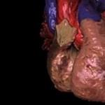 Már évekkel előre képes megjósolni egy esetleges szívrohamot egy új eljárás