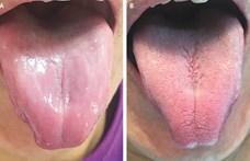 Drasztikus vitaminhiány miatt tűntek el az ízlelőbimbók egy férfi nyelvéről