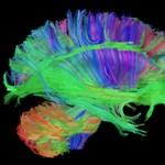 Így vizsgálják majd az agyunkat
