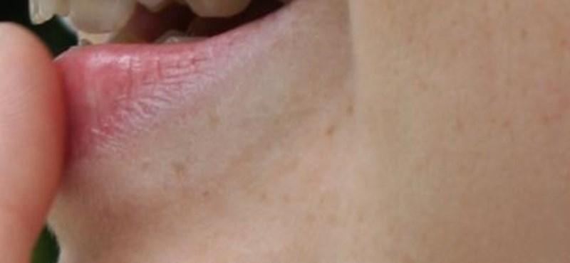 Napi tipp: így bánhatunk el a herpesszel