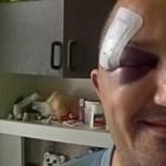 Megvertek egy férfit a szombati tüntetés után