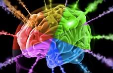 Megvizsgálták 24 ember agyát, és furcsa kettősség derült ki az ábrándozásról