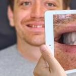 Egy programmal előre látható a fogorvosnál, milyen lesz a végeredmény – videó