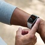 Magyarországon is működik már az új Apple Watch EKG-s funkciója