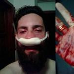 Üzent a Ferencvárosban megvert melegjogi aktivista