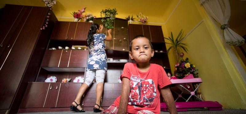 Eldőlt: nem lakoltatják ki a végtaghiányos Viktort és családját