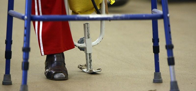 Új módszer segíti az orvosokat az érszűkületes lábak megmentésében