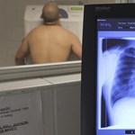 Emeljünk falakat, hordjunk maszkot, mérjünk lázat: egy tüdőgyógyász tanácsai a védekezéshez