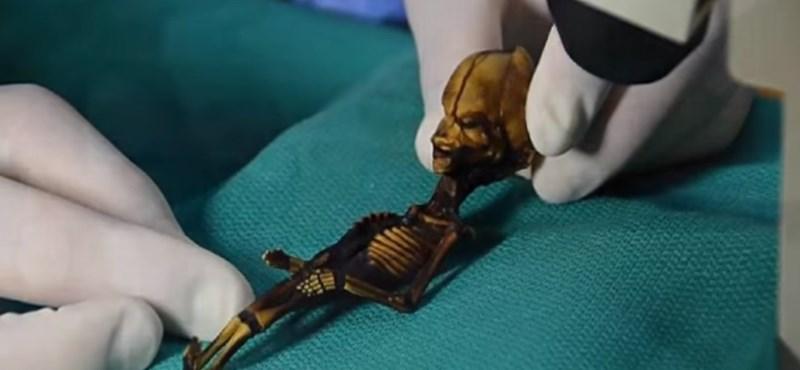 Megfejtették a chilei törpe múmia titkát