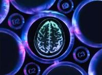 A nők között több az Alzheimer-kóros