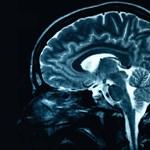 Hatékony szert találtak a szklerózis multiplexes agy elváltozásaira