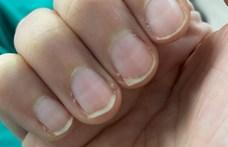 A körmön megjelenő halvány vonalak is utalhatnak arra, hogy átesett a koronavíruson
