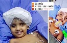 Mindkét szétválasztott sziámi iker állapota stabil, a másik kislány is kinyitotta a szemét