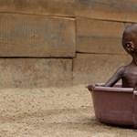 A gyermekkorban éhezők inkább lesznek szívbetegek