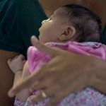 Milyen élet vár a kisfejűséggel született babákra?