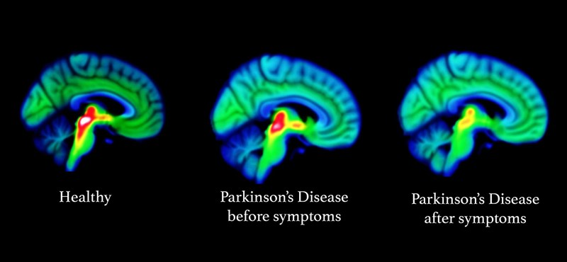 15-20 évvel korábban is látszik: megtalálták a Parkinson-kór legkorábbi jeleit az agyban