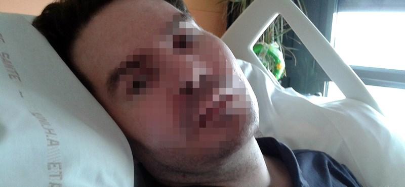 Meghalt a férfi, akinek a felesége harcolta ki az eutanáziát