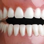 Hétfőn sztrájkba lépnek a fogászok