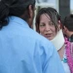Nyakmerevítőben ment a megütött ligetvédő a mai tüntetésre - videó