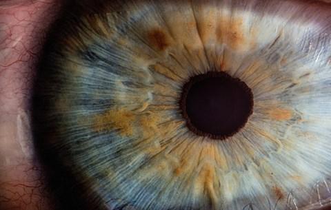 rossz látósejt a távolsági látás csökkenése