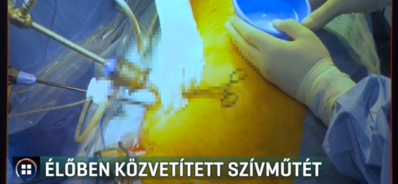 Újfajta eljárással segíthetnek a jövőben a szívritmuszavaros betegeken magyar orvosok